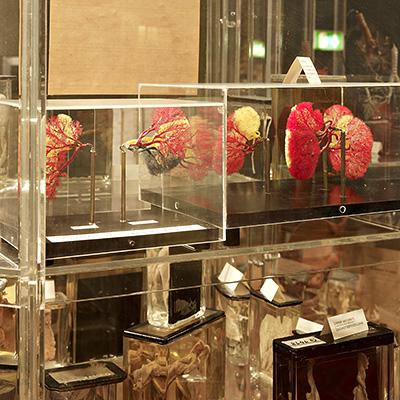The Museum Of Anatomy In Innsbruck
