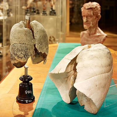 Museum : Anatomie-Innsbruck